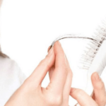hair loss causes and treatment