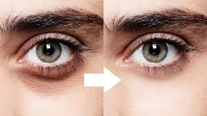 How to remove dark eye circles