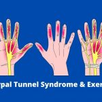 Carpal Tunnel Syndrome & Exercises (3)