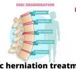 Disc herniation treatment