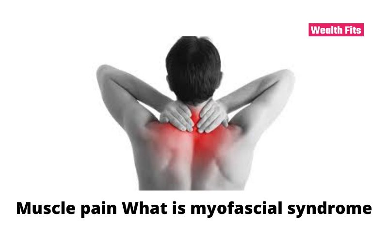 Muscle pain What is myofascial syndrome