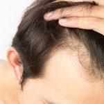 Undertaking Hair Transplant Surgery- Fridah