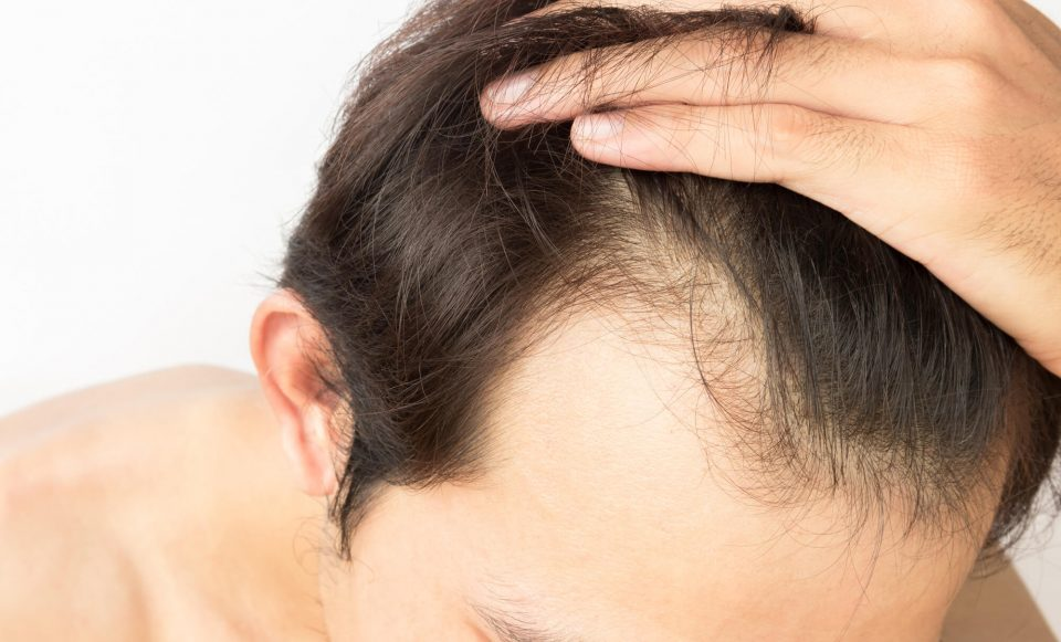 Undertaking Hair Transplant Surgery- Fridah