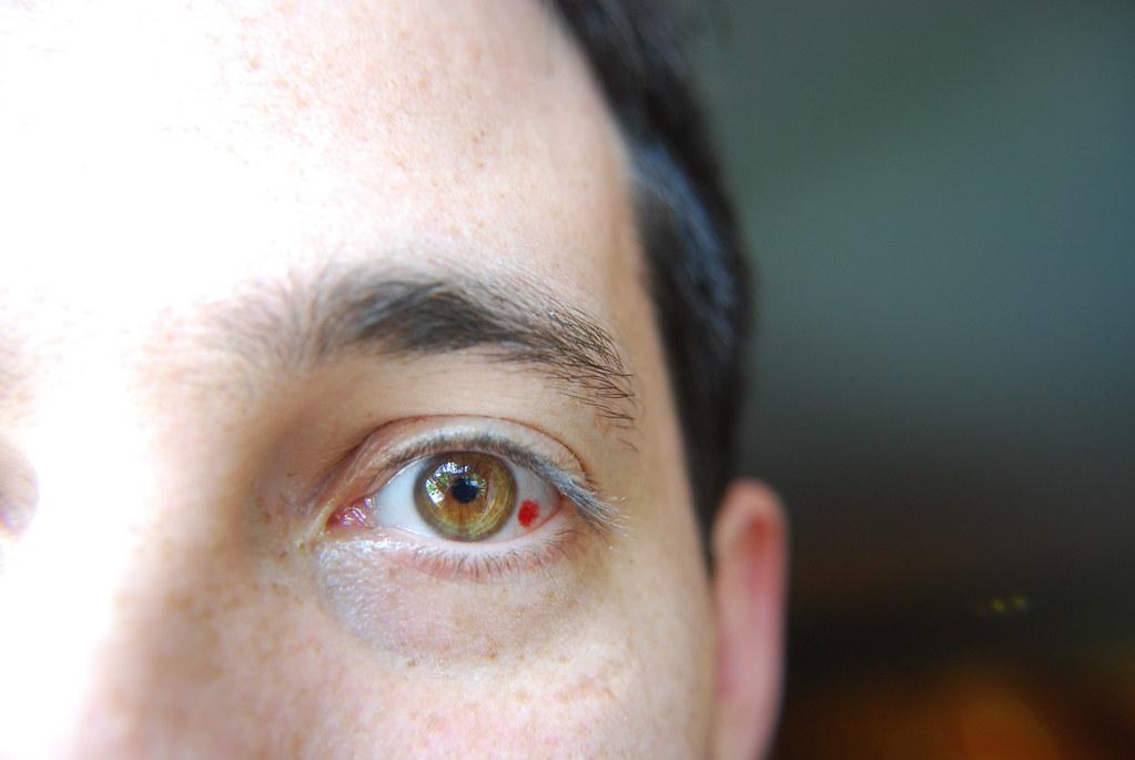 Burst Blood Vessel Eye