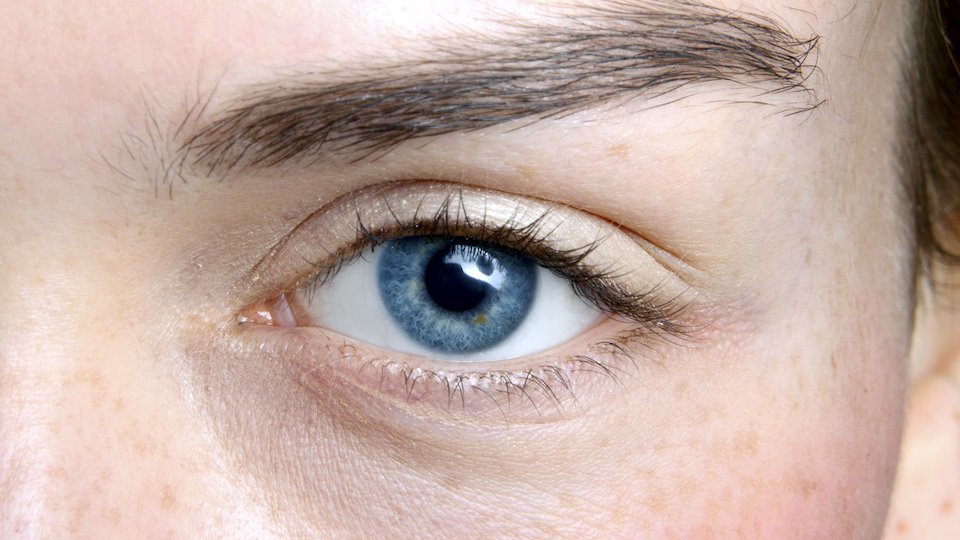 What Causes Bags Under Eyes