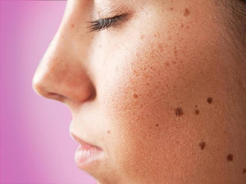 dark spots on the face