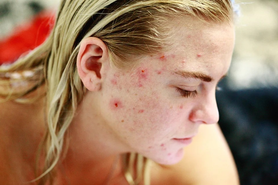 face cream for pimples and dark spots