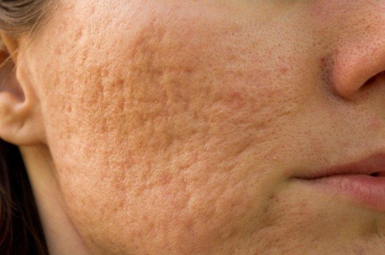 minimizing pores
